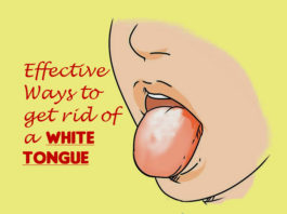 Quick Ways to Get Rid of White Tongue