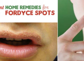Excellent Home Remedies for Fordyce Spots