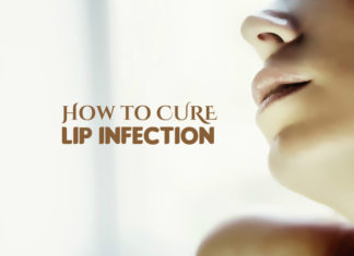 How to Heal a Lip Infection