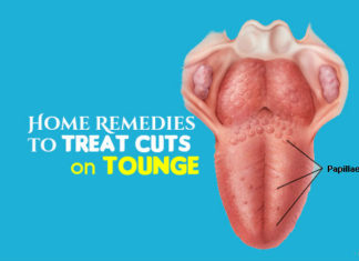 Heal Cuts on Tongue Using Simple Home Remedies