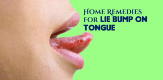 Lie Bump on Tongue Natural Treatment
