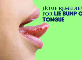 Lie Bumps on Tongue Natural Treatment