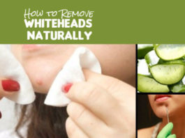 How-to-Remove-Whiteheads