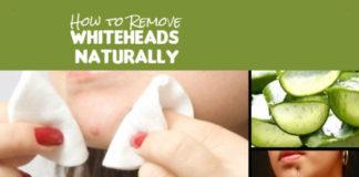 Remove Whiteheads