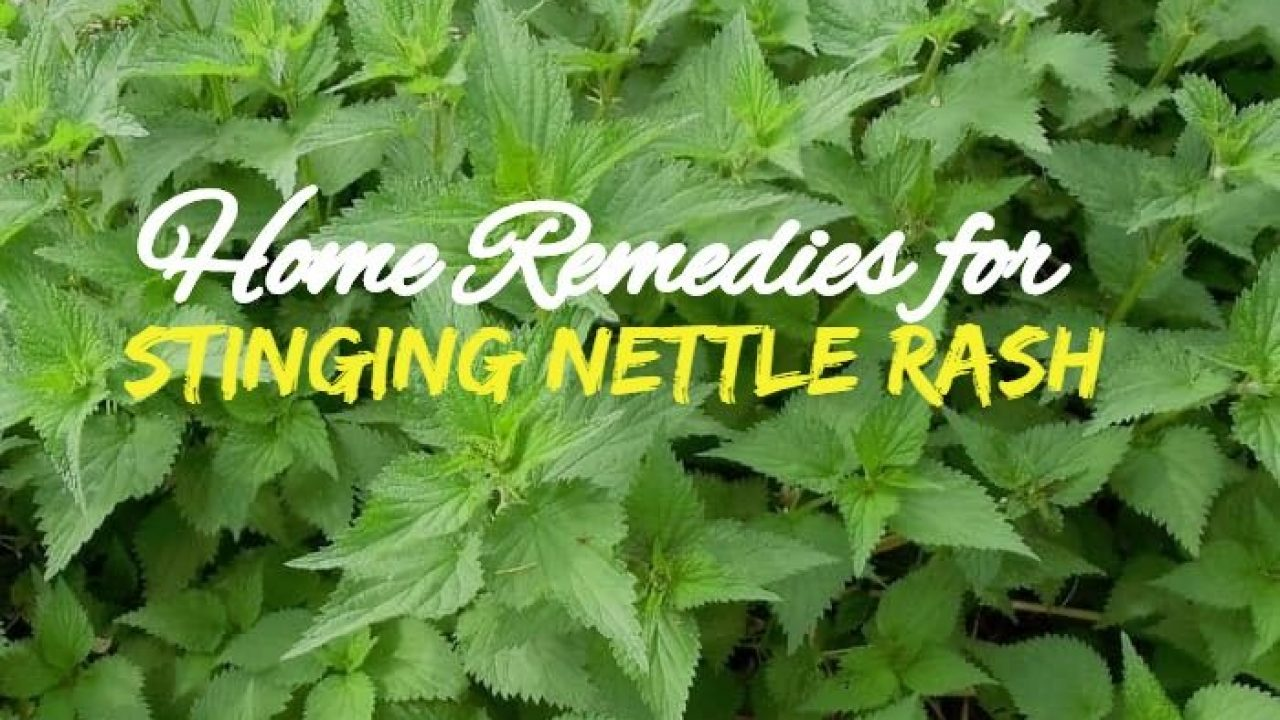 Stinging Nettle Treatment Best Remedies That Work