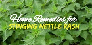 Stinging Nettle Treatment using Home Remedies