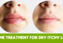 Home Treatment for Dry Itchy Lips using home remedies
