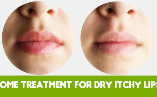 Home Treatment for Dry Itchy Lips