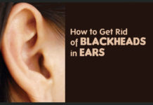 How to Get Rid of Blackheads in Ear
