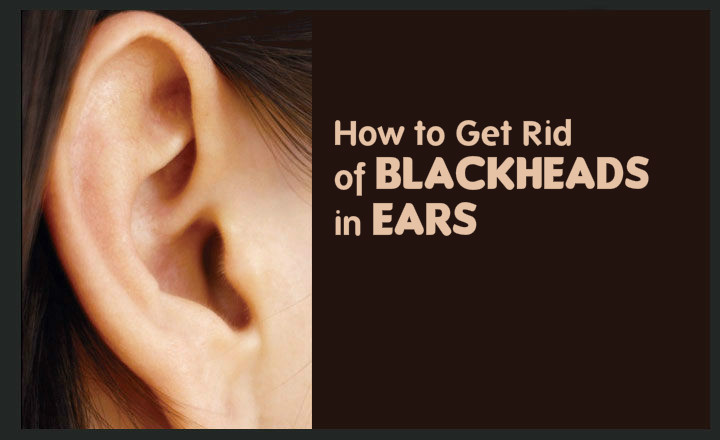 http://wellnessbells.com/wp-content/uploads/2016/12/How-to-Get-Rid-of-Blackheads-in-Ear.jpg
