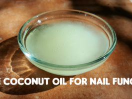 coconut oil for nail fungus