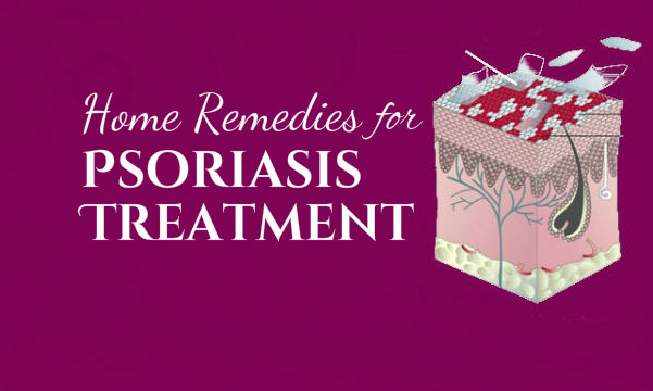 effective home remedies for psoriasis