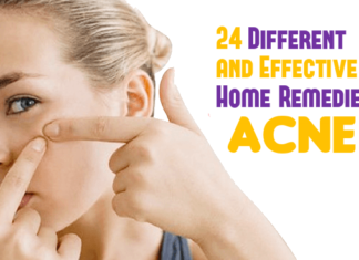 24 Different and Effective Home Remedies for Acne