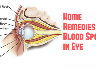 Natural Home Remedies for Blood Spot in Eye