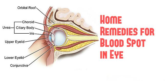 Eye Acne Home Remedies