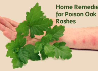 Home remedies for poison oak rash