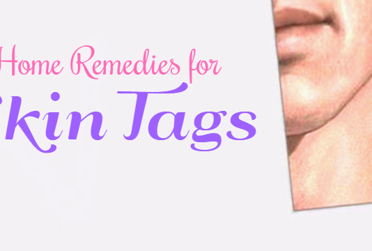 Simple an effective Home Remedies for Skin Tags