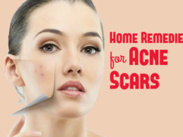 hom-remedies-for-acne scars