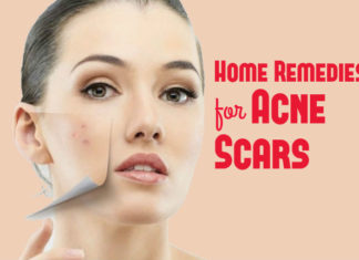 how to get rid of acne scars using home remedies