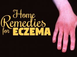 how to get rid of eczema naturally at home