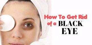 home remedies to get rid of black eye