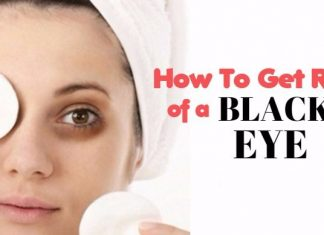 home remedies to get rid of black eye