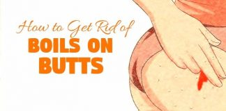 how to get rid of boils on butts