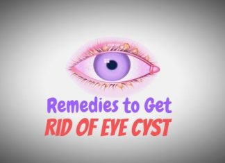 Perfect Remedies to Get Away With an Eye Cyst