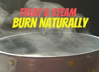 How To Treat A Steam BurnNaturally