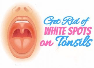 How to Get Rid of White Spots on Tonsils at home