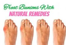 Powerful Natural Remedies With Treat Bunions