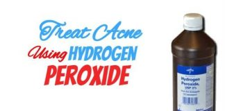 Treating Acne Using Hydrogen Peroxide