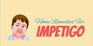 Remedies for Treating Impetigo At Home