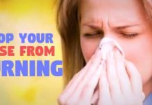 how to stop burning nose naturally